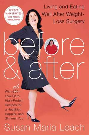Before & After, Second Revised Edition: Living and Eating Well After Weight-Loss Surgery de Susan Maria Leach
