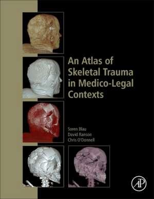 An Atlas of Skeletal Trauma in Medico-Legal Contexts de Soren Blau