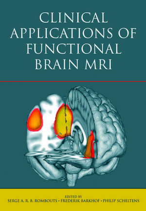Clinical Applications of Functional Brain MRI