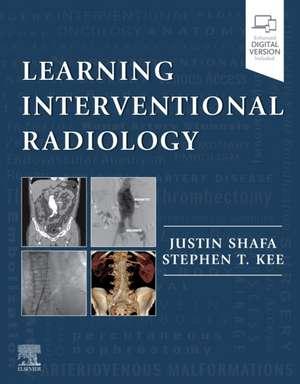 Learning Interventional Radiology de Justin Shafa
