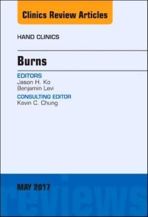 Burns, An Issue of Hand Clinics de Jason H. Ko