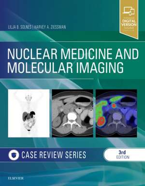 Nuclear Medicine and Molecular Imaging: Case Review Series imagine