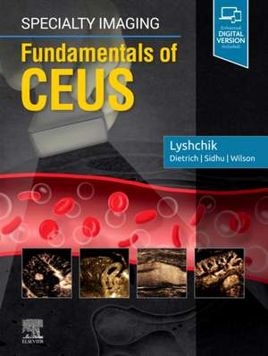 Specialty Imaging: Fundamentals of CEUS imagine