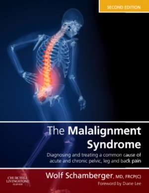 The Malalignment Syndrome: diagnosis and treatment of common pelvic and back pain de Wolf Schamberger