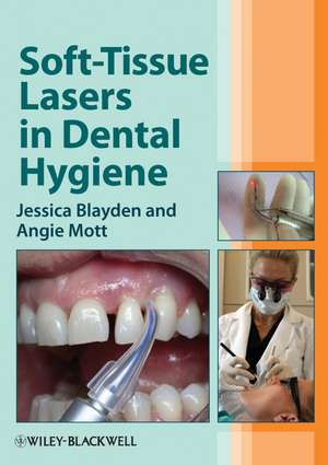 Soft–Tissue Lasers in Dental Hygiene