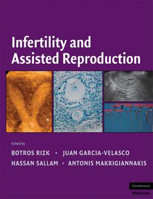 Infertility and Assisted Reproduction de Botros R. M. B. Rizk