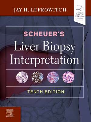 Scheuer's Liver Biopsy Interpretation imagine