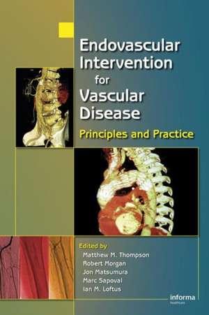 Endovascular Intervention for Vascular Disease