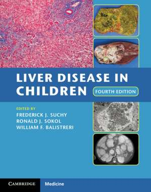 Liver Disease in Children imagine