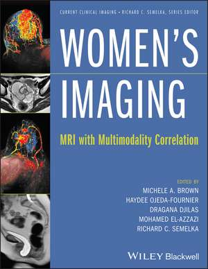 Women′s Imaging: MRI with Multimodality Correlation de Michele A. Brown