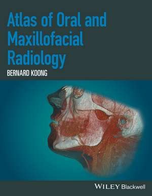Atlas of Oral and Maxillofacial Radiology de Bernard Koong