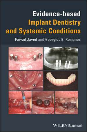 Evidence–based Implant Dentistry and Systemic Conditions