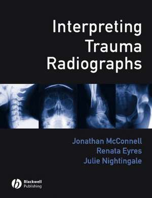 Interpreting Trauma Radiographs