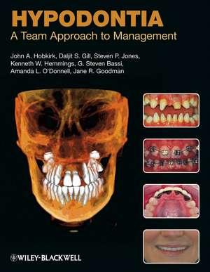 Hypodontia: A Team Approach to Management de John A. Hobkirk