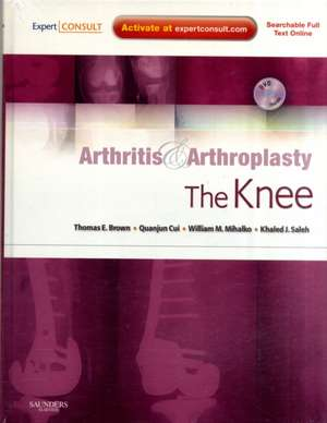 Arthritis and Arthroplasty: The Knee