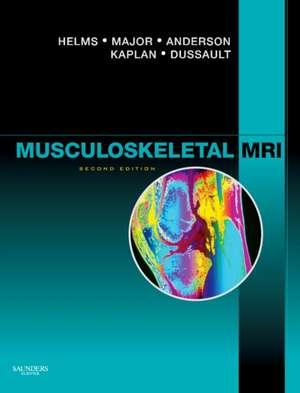 Musculoskeletal MRI de Clyde A. Helms