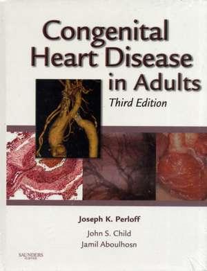 Congenital Heart Disease in Adults imagine