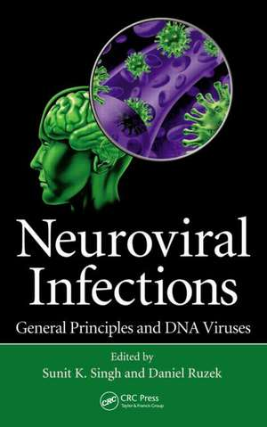 Neuroviral Infections. General Principles and DNA Viruses