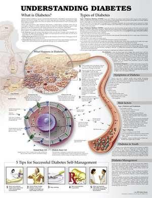 Understanding Diabetes Anatomical Chart