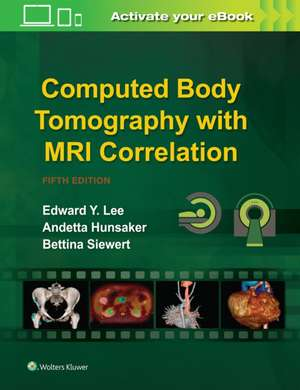 Computed Body Tomography with MRI Correlation imagine