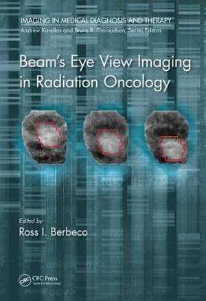Beam's Eye View Imaging in Radiation Oncology de Ross I. Berbeco