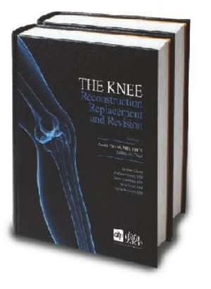 The Knee de Javad Parvizi