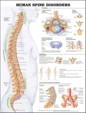 Human Spine Disorders Anatomical Chart de Anatomical Chart Company