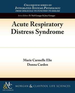 Acute Respiratory Distress Syndrome de Marie C. Elie