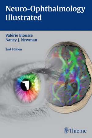 Neuro-Ophthalmology Illustrated de Valérie Biousse