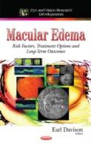 Macular Edema