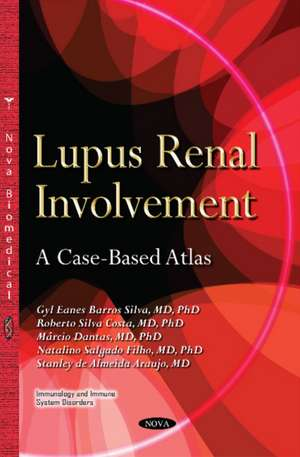 Lupus Renal Involvement