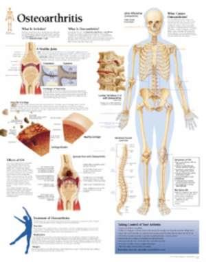 Understanding Osteoarthritis Chart: Wall Chart