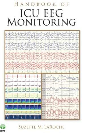 Handbook of ICU EEG Monitoring