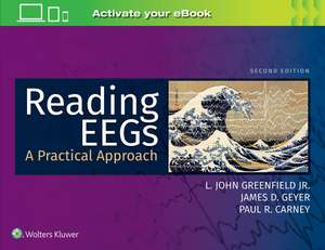 Reading EEGs: A Practical Approach imagine