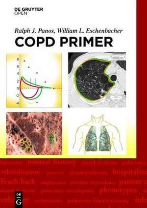 A COPD Primer