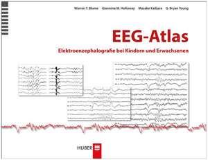 EEG-Atlas