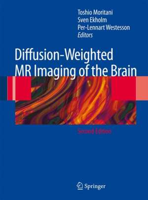 Diffusion-Weighted MR Imaging of the Brain de Toshio Moritani