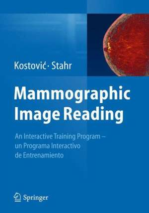 Mammographic Image Reading