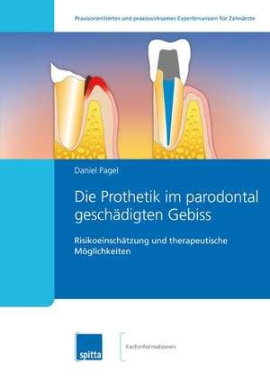 Die Prothetik im parodontal geschaedigten Gebiss