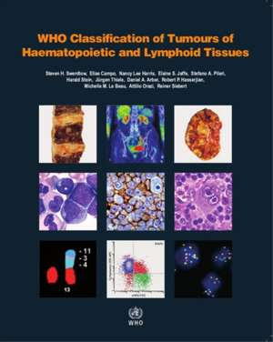 WHO Classification of Tumours of Haematopoietic and Lymphoid Tissues (Revised) de World Health Organization