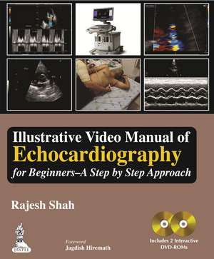 Illustrative Video Manual of Echocardiography for Beginners - A Step by Step Approach