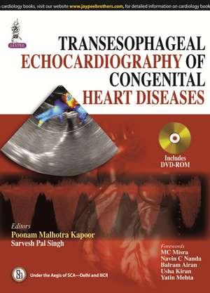 Transesophageal Echocardiography of Congenital Heart Diseases de Poonam Malhotra Kapoor