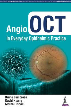 Angio OCT in Everyday Ophthalmic Practice