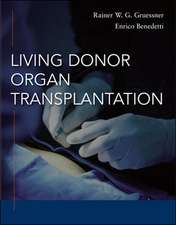 Living Donor Organ Transplantation