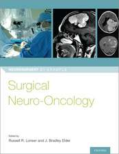 Surgical Neuro-Oncology