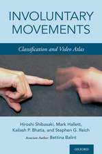 Involuntary Movements: Classification and Video Atlas