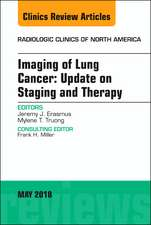 Lung Cancer, An Issue of Radiologic Clinics of North America