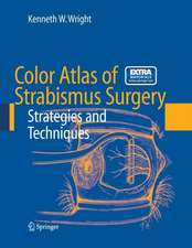 Color Atlas of Strabismus Surgery: Strategies and Techniques
