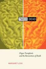 Twice Dead – Organ Transplants & the Reinvention of Death