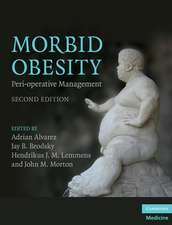 Morbid Obesity: Peri-operative Management